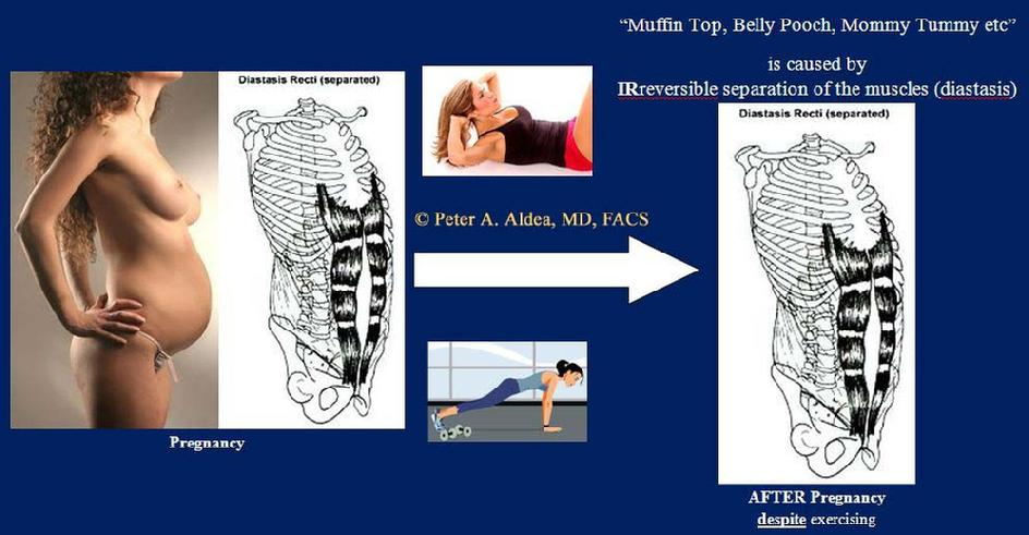 The separated muscles cannot be brought together by exercise